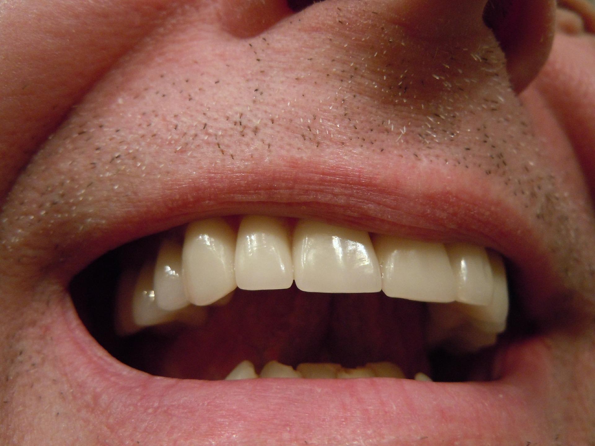 sanatate orala